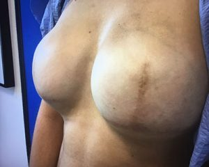 Love Your Body Areola Tattoo before