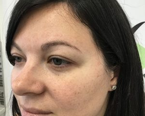 Love Your Body Microblading Before