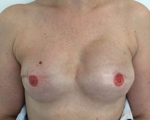 Love Your Body Areola Tattoo after