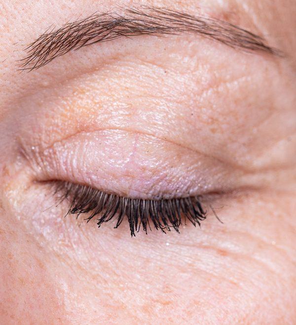 Eye Lids Treatment